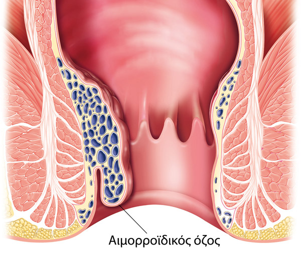 Αιμορροΐδες: Αίτια, συμπτώματα & ανώδυνη θεραπεία